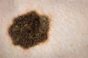 melanoma skin cancer picture 5
