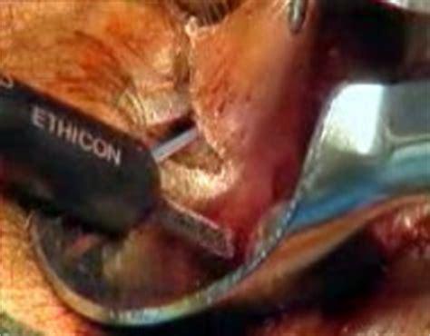 harmonic scalpel hemorrhoidectomy picture 1