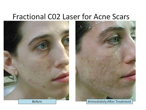 co2 laser for post acne scars picture 11