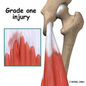 hamstring muscle injuries picture 3