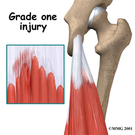 hamstring muscle injuries picture 11