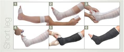 women crutches pain leg picture 6