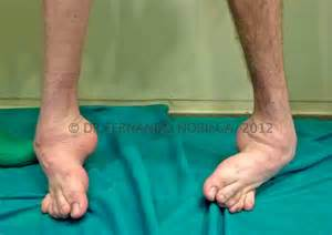 muscle in legs disease picture 2