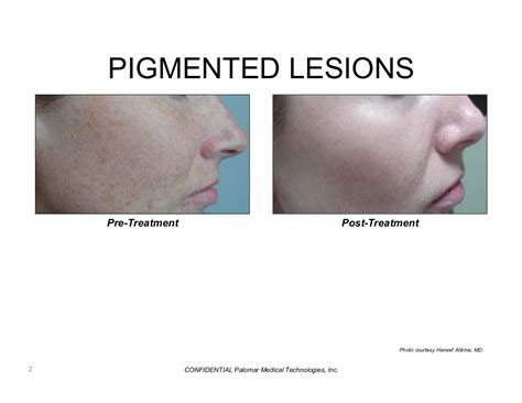 ipl laser results on acne marks picture 4
