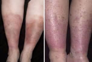 hemosiderin skin discoloration picture 14