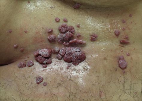 skin warts picture 2