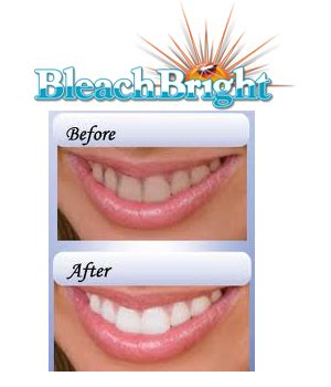 custom bright coupon code teeth whitening picture 13