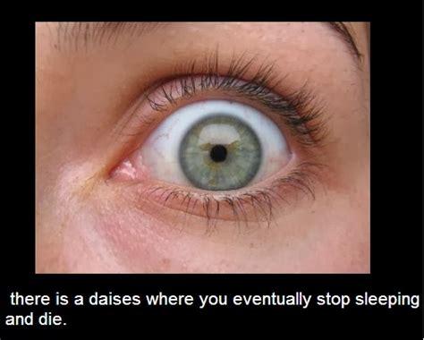 fatal familial insomnia picture 11