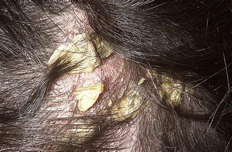 skin like dandruff picture 18