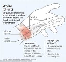 sudden onset joint pain picture 6