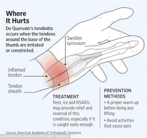 home remedies for wrist joint problem picture 5