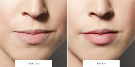 Lip injections picture 10