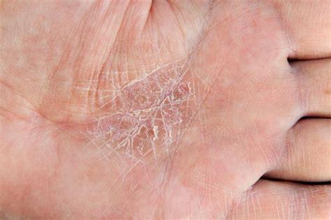 face skin rash picture 6