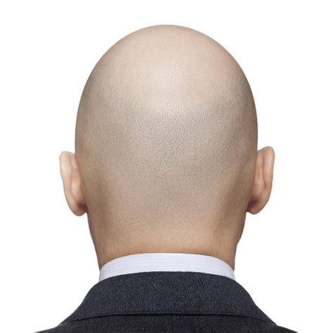 causes hair loss picture 9
