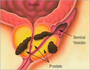 Prostate cancer that spread to lymph nodes picture 3