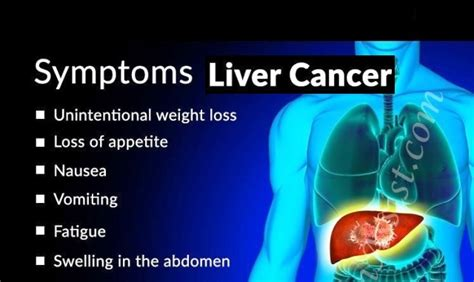 liver cancer, symptoms of picture 6