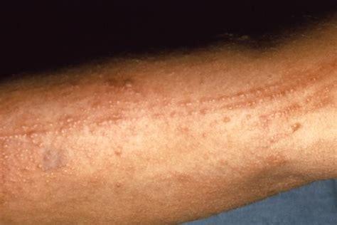 poison skin rashes picture 10