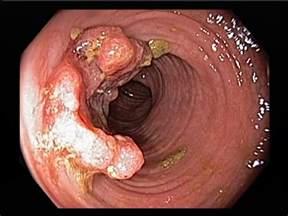 colon tumor names picture 6