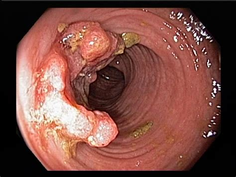 cancer on the outside of the colon picture 1