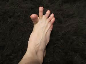 muscle cramps in hands and feet picture 1