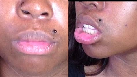 Discoloration and irritation on upper lip picture 2