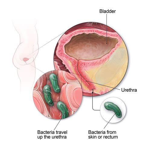 continuous bacterial infection in urinary tract picture 6