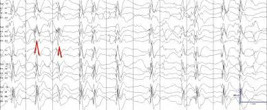 seizures during sleep picture 5