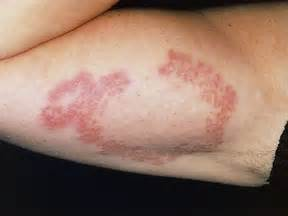dibetes and skin sores picture 5