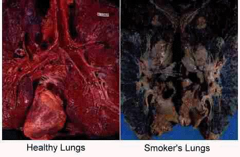 smoke damaged lungs picture 17