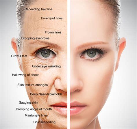 acne rosecea picture 5