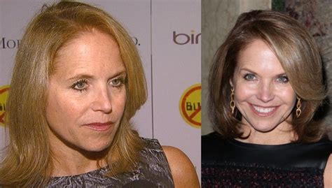 katie couric acne treatment picture 13