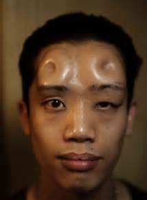 after doing my skin on my head felf picture 6