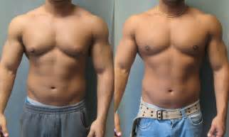 the result for men ith big breast after the use of picture 9