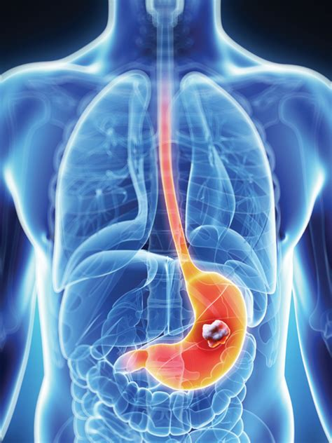 Colon cancer smoking picture 10