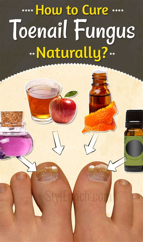 how to cure nail fungus picture 5