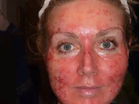 fluorouracil 5 cream side effects picture 6