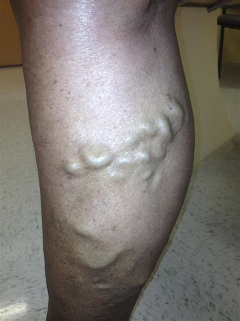 calf muscle lump picture 9