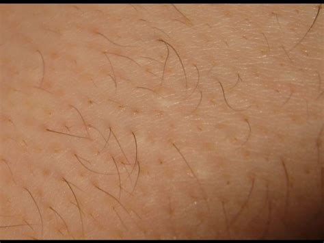 laser pubic hair removal picture 5