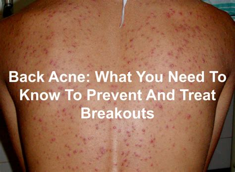 how to clear acne on your back picture 1