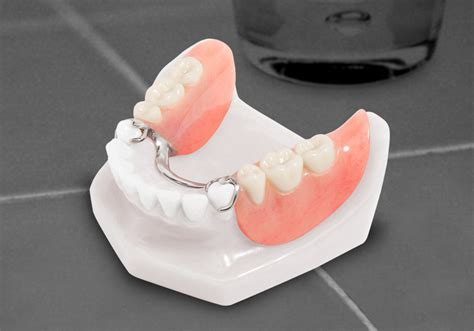 false teeth permanent picture 6