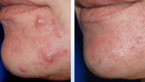 what causes adult acne picture 7