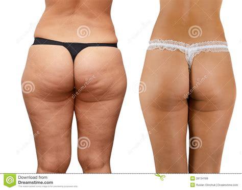 cellulite en pr picture 10