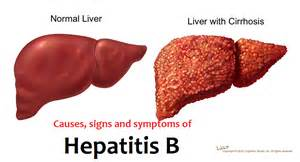 liver disease and no appee picture 18