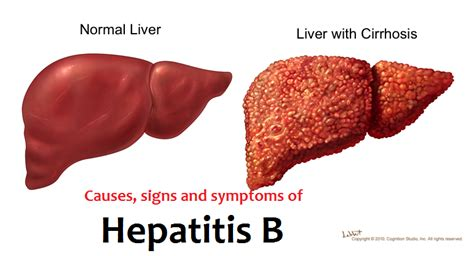 liver cancer end stage signs picture 1