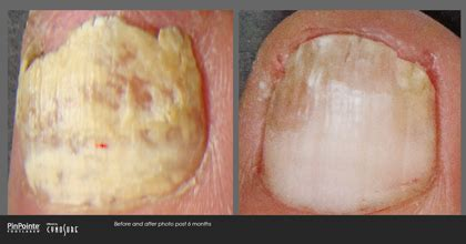 pinpointe footlaser orange county, california picture 9