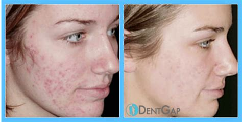 laser acne removal picture 5