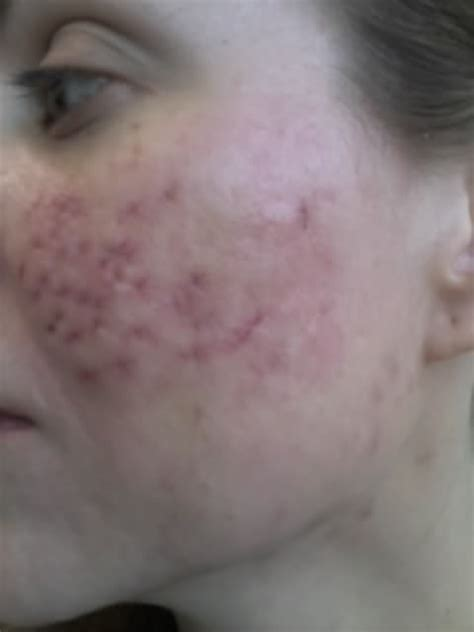 cystic acne around cheeks picture 9