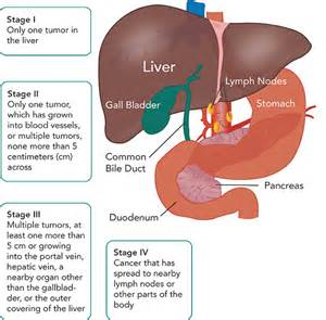 seattle liver cancer treatment picture 9