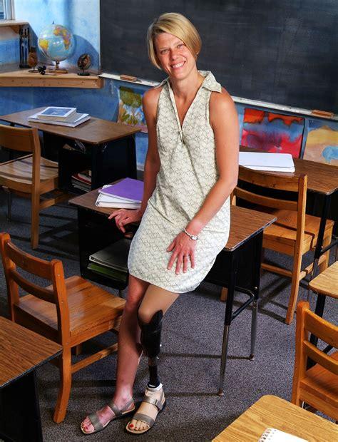 women amputee teacher one leg picture 2