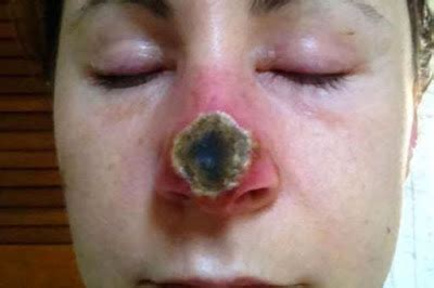 natural cure skin holes picture 6